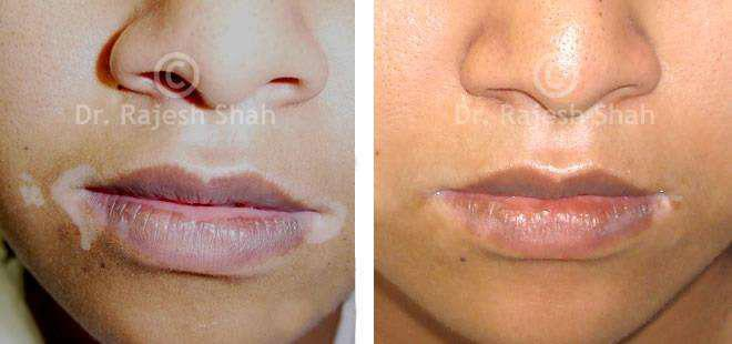 Homeopathy clinic for vitiligo treatment