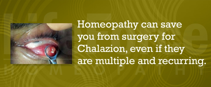 Homeopathy for chalazion