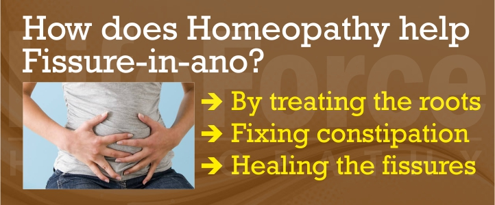 Best Homeopathy Treatment for Fissure in Ano