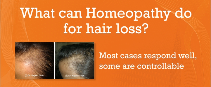 Treatment for Hair Fall and Hair Loss