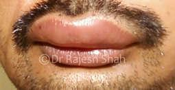 Homeopathy for angioedema