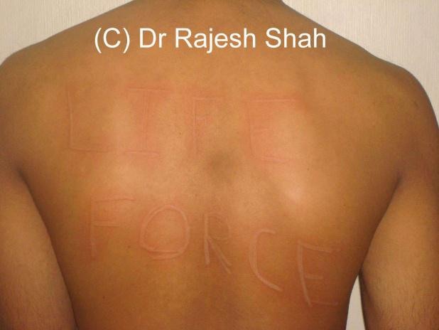 Homeopathic medicine for Dermatographism