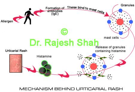 Mechanism Behind Urticaria Rash