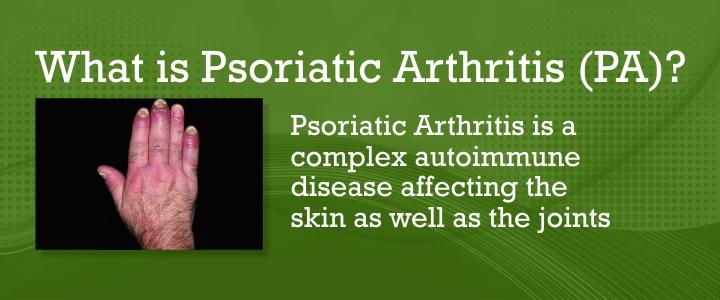 psoriatic arthritis treatment)