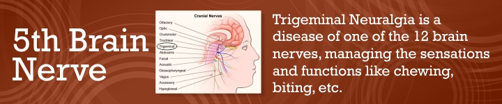 Best Treatment for Trigeminal Neuralgia