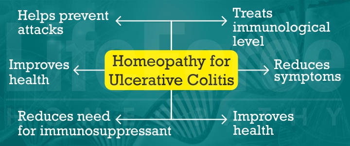 Homeopathic Treatment for Ulcerative Colitis