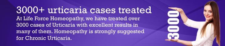 Urticaria case studies