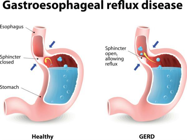 Homeopathic treatment for Gastro-esophageal reflux